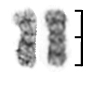 isochromosome Xp